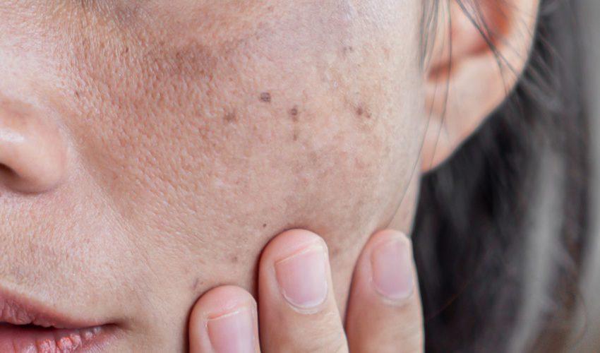 Melasma: O que é, Causas, Sintomas, Prevenção e Tratamentos